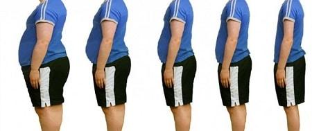 types de l'obésité