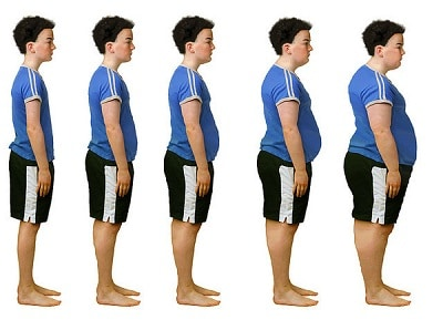 liposuccion et chirurgie bariatrique