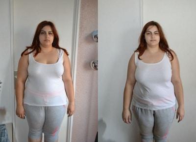 liposuccion et chirurgie obesite